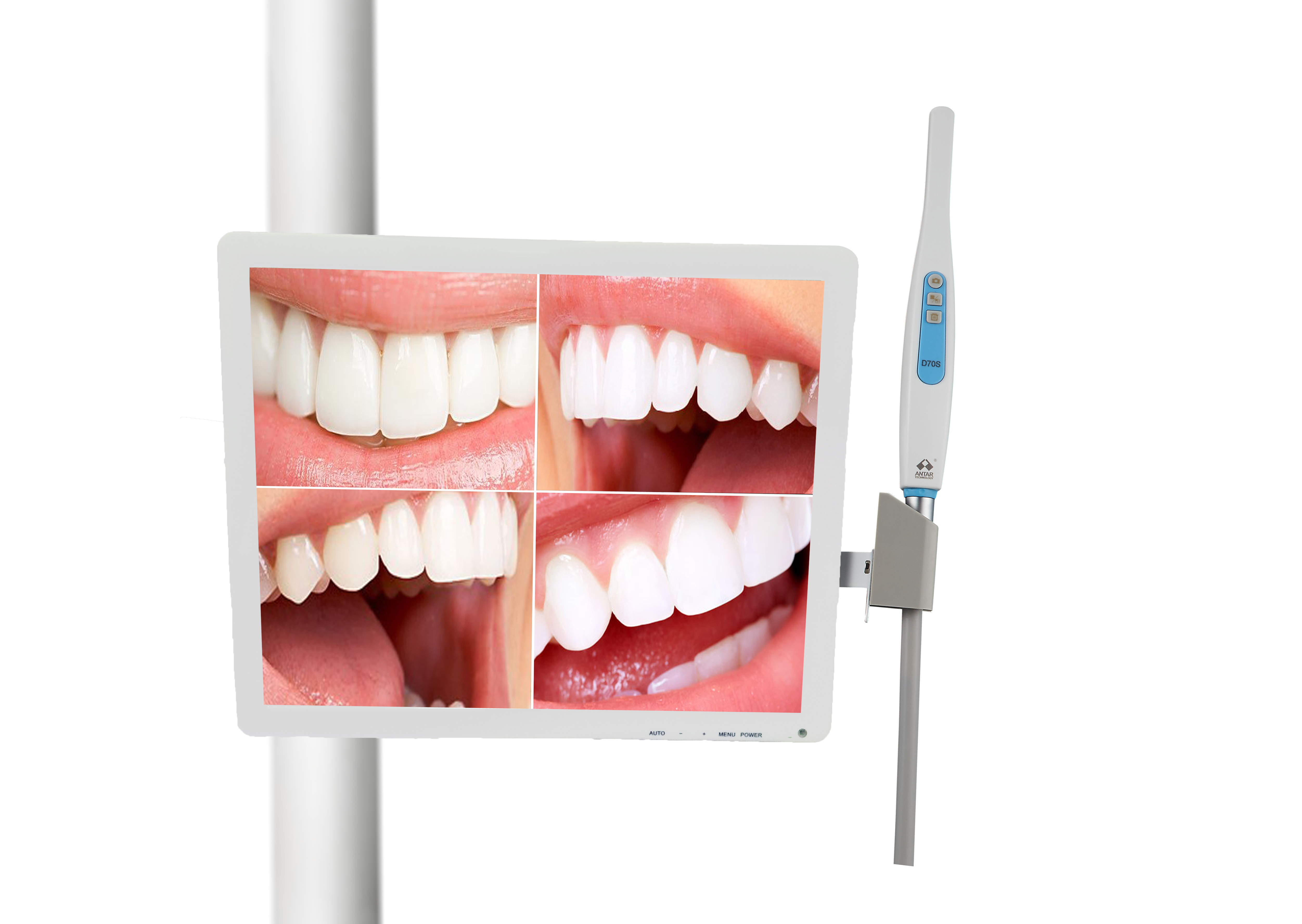 Intraoral Camera with 17inch Multimedia LED Monitor