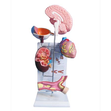 EP-1114 Hypertension Model