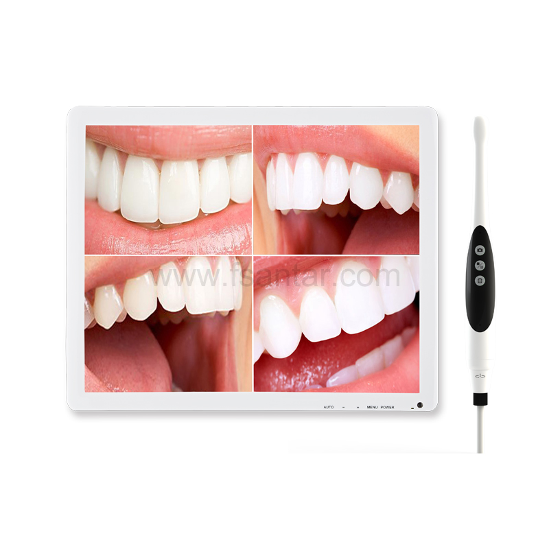 Intraoral Camera D70-Plus with 17 inch Monitor