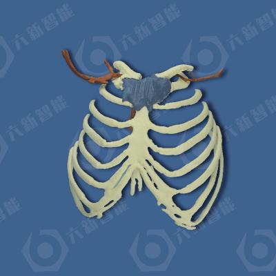 胸骨肿瘤模型