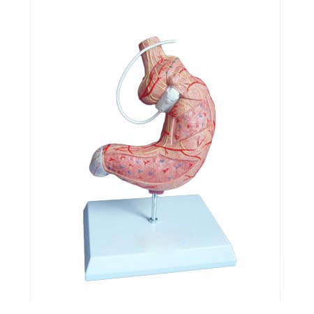EP-1157 Stomach model