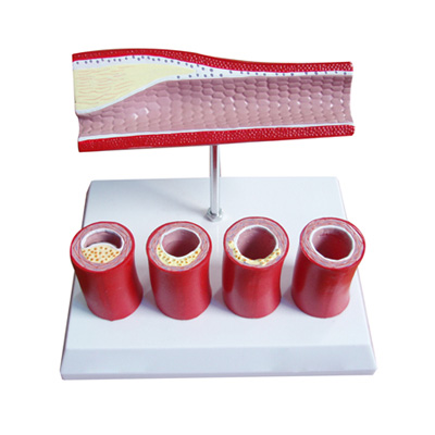 EP-678 Artery Model