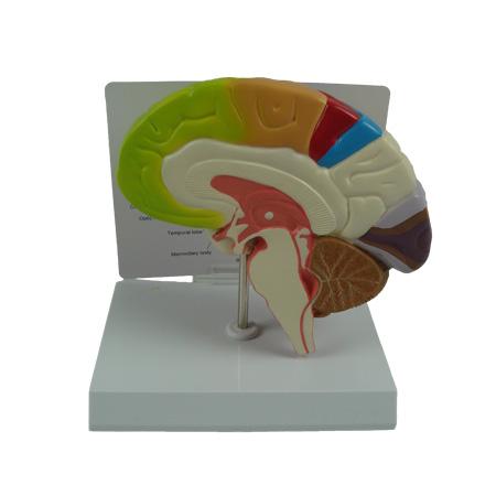 EP-1489 Brain Model