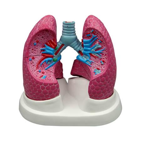 EP-1058 Bronchopulmonary Pathology