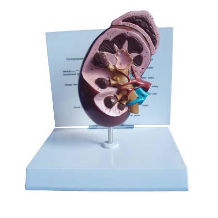 EP-1131 Kidney Model