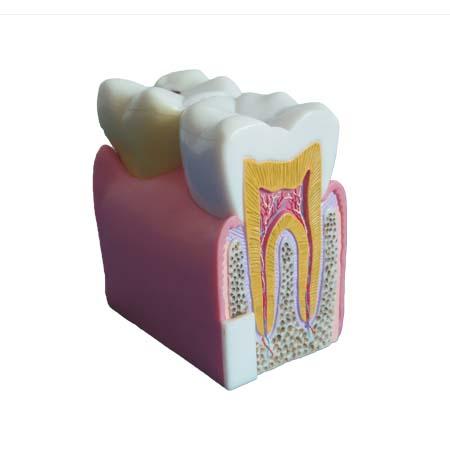 EP-1124 Teeth Model